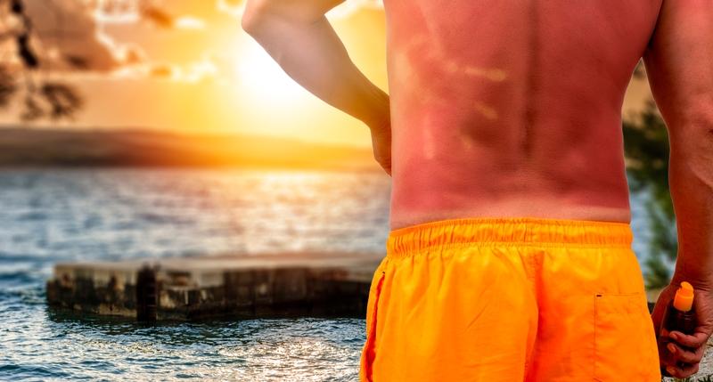 Sunburn is fun for nobody